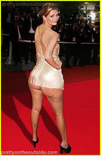 Cellulite Mischa