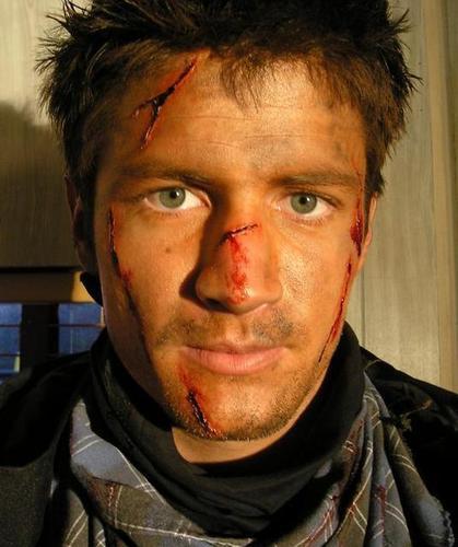Nathan Gets Attacked!!!!