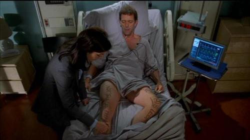 In which episode did we NOT see the scar on House's leg?